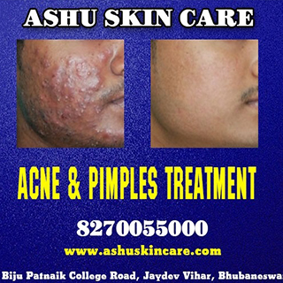 acne and pimples clinic