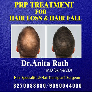 hair fall treatment clinic