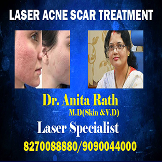 laser pimples scar treatment